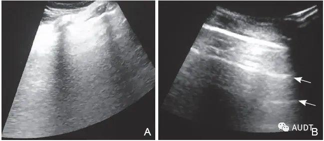 重症COVID-19治疗前后肺部超声