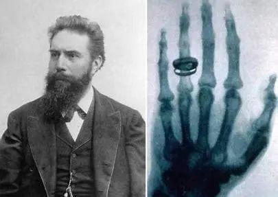 X射线的发明者伦琴与第一张X射线医学影像照片
